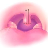 Zäpfchen-Kürzung und Schleimhaut-Kanalisierung