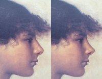 John Singer Sargent (1878): Kopf eines Mädchens aus Anacapri | HNO Privatpraxis Dr. Schuster