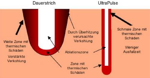 Laser Lidstraffung München