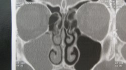 CT chronische Kieferhöhlenentzündung | Dr. Schuster