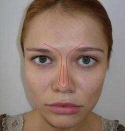 Nasenspitzenkorrektur ohne OP
