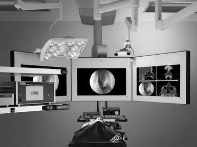 Navigations-Endoskopie im Nasennebenhöhlenbereich