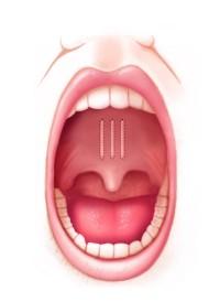 Säulenimplantate verhindern Vibration im Gaumen | Pillar-Verfahren