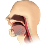Revent Gaumensegel-Zungenimplantationssystem | Dr. Schuster München